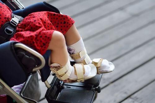 Bambina sulla sedie a rotelle.