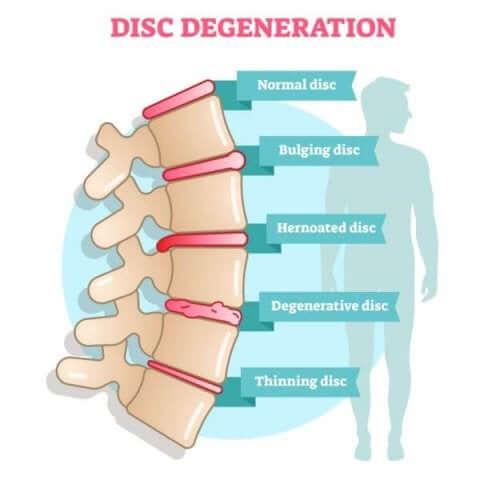Discopatia degenerativa: sintomi e cause