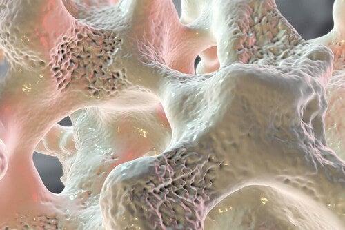 Rappresentazione dello edema osseo.