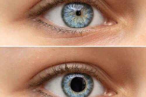 Miosi o pupilla puntiforme: a cosa è dovuta?