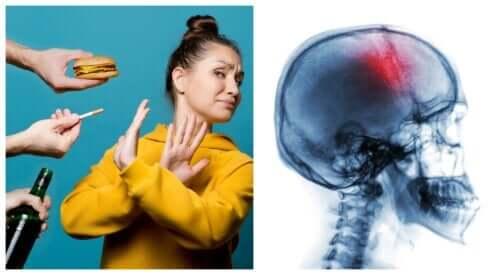 Misure preventive contro l'ictus: 7 sane abitudini