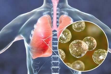Infezione polmonare da germi.