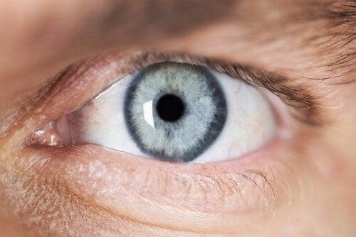 Persona con miosi o pupilla puntiforme.
