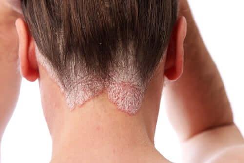 Placche eritematose della psoriasi del cuoio capelluto.