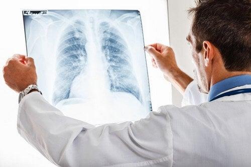 Medico che osserva una radiografia polmonare.