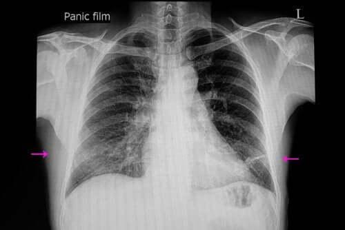 Atelettasia polmonare: sintomi e cause
