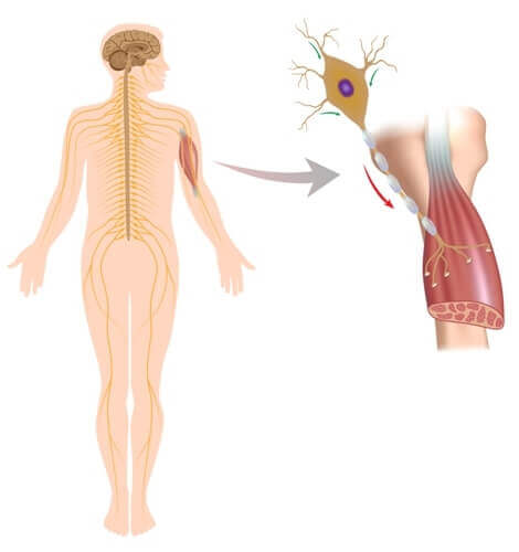 Corpo umano con distrofia muscolare.