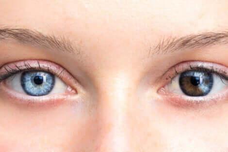Bambina con occhi di colore diverso.