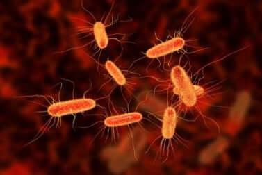Presenza di batteri nel sangue e artrite settica.