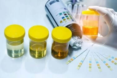Campioni di urine nella diagnosi di aspenia.