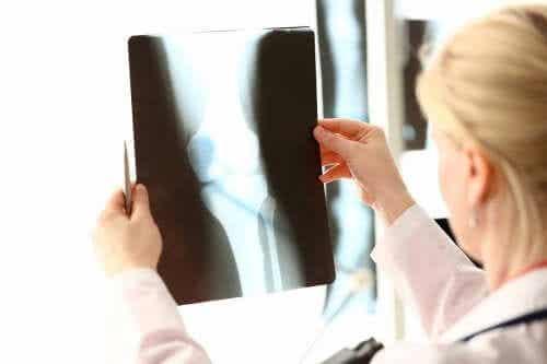 Cibi ricchi di calcio e vitamina D per la salute delle ossa