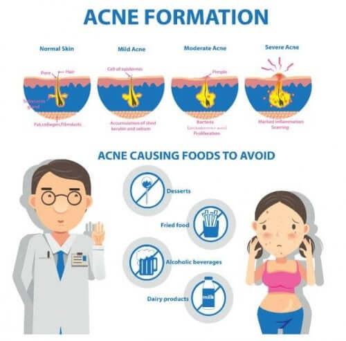L'acne cistica: cause e sintomi del problema