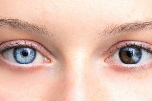 Occhi di colore diverso: c'è da preoccuparsi?