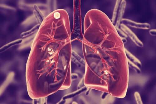 Tubercolosi polmonare: causa e sintomi?