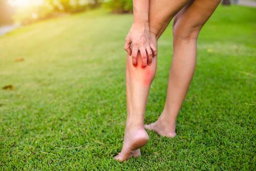 Prurito ad una gamba.