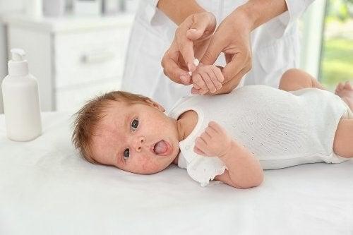 Acne neonatale: cause e trattamenti