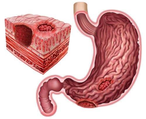 L'ulcera peptica e relazione con l'Helicobacter pylori