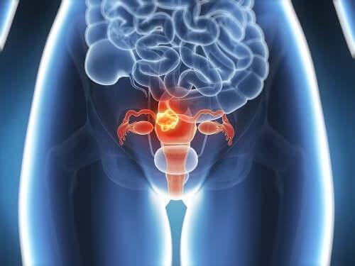 I sintomi della endometriosi.