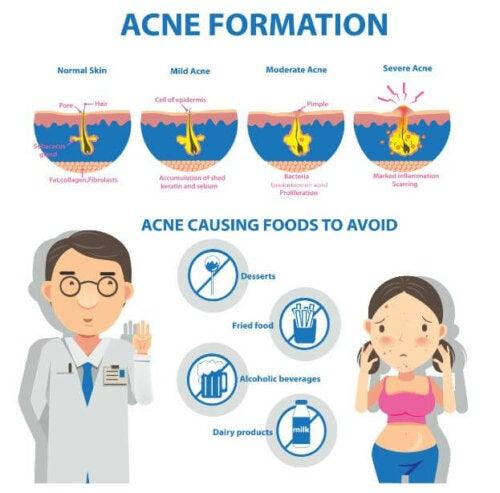 Fattori scatenanti dell'acne.