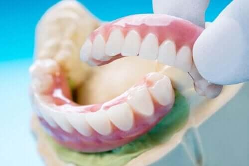 Ponte dentale: tipi, vantaggi e svantaggi