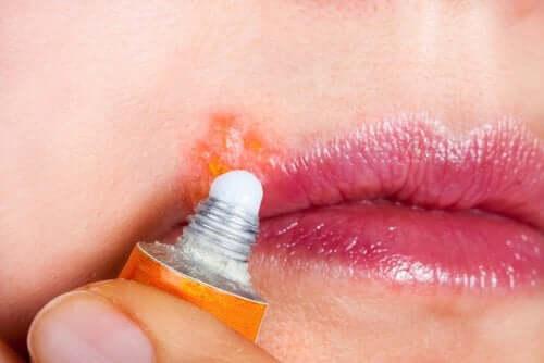 L'herpes labiale: sintomi e trattamento