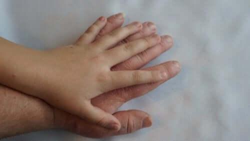Acromegalia: cos'è e quali sono i sintomi
