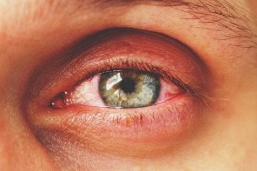 Infiammazione dell'occhio.