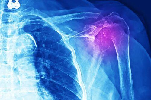 Radiografia per diagnosticare una tendinite alla spalla.