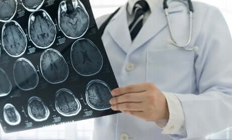 Trauma cranio-encefalico: radiografie alla testa.