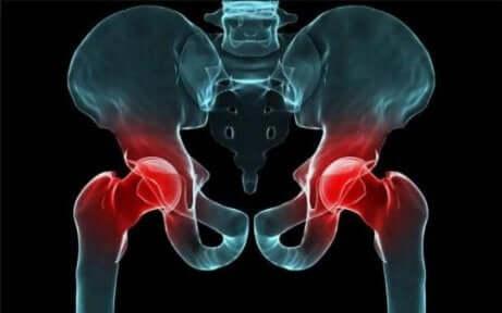 Raggi X alla anca.