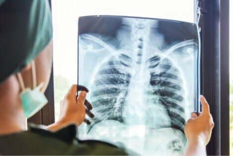 Raggi X polmoni.