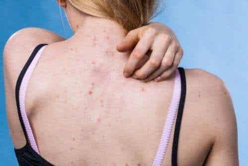Prevenire le malattie della pelle più comuni