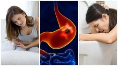 Sintomi della ulcera peptica.