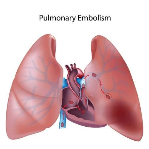 Tromboembolia polmonare: tutto quello che c'è da sapere