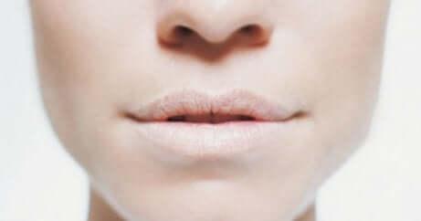 Viso femminile con labbra disidratate e anidrosi.