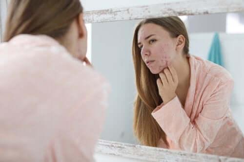Acne ormonale: fattori scatenanti e cure