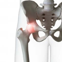 Articolazione della anca.