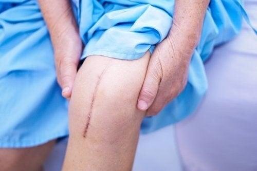 Cicatrizzazione della pelle: fasi e tipi