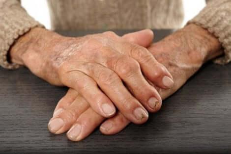 Mani di persona anziana.