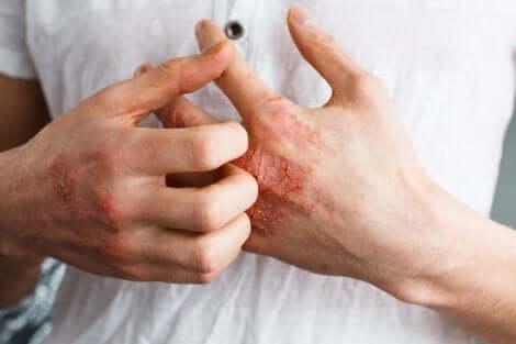 Mani di una persona affetta da dermatite.