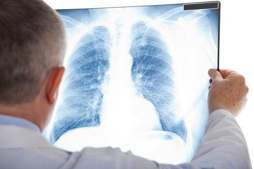 Embolia polmonare: sintomi e trattamento