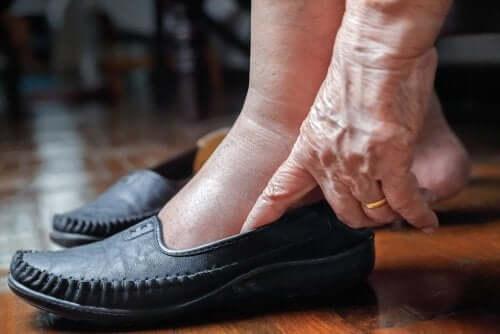 Gambe gonfie per il caldo: misure preventive