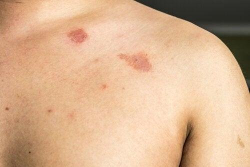 Pitiriasi versicolor: sintomi e trattamento