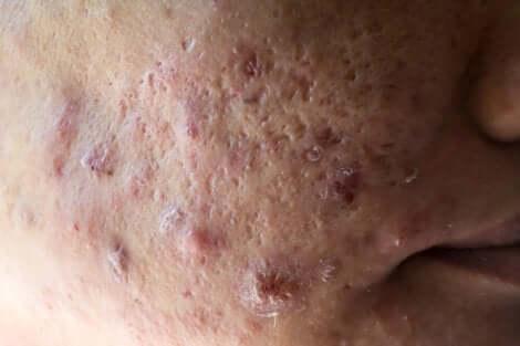 Cicatrici da acne sul viso.
