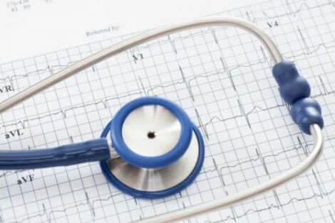 farmaci antiaritmici, stetoscopio ed elettrocardiogramma.