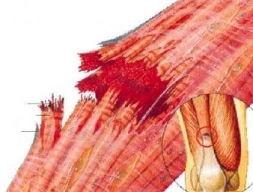 Fibre muscolari a seguito di uno strappo muscolare.