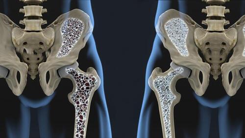 Radiografia del bacino.