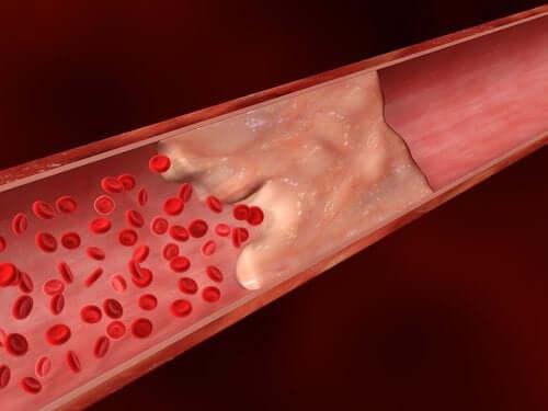 Calcio nelle arterie e malattie cardiovascolari