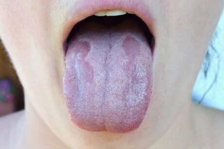 Candidosi della lingua.