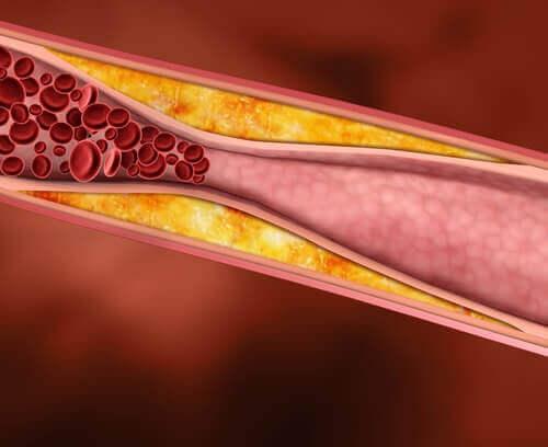 Colesterolo cattivo nelle arterie.